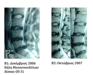 Μαγνητική ίασης κήλης μεσοσπονδύλιου δίσκου