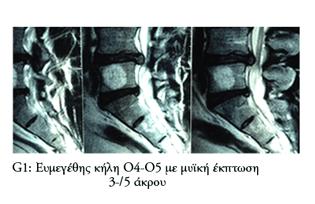 Θεραπεία ευμεγέθοιυς δισκοκήλης με μυϊκή έκπτωση άκρου