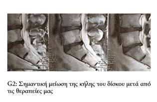 Μαγνητική δισκοκήλης πριν και μετά την θεραπευτική παρέμβαση