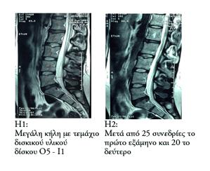 Μαγνητική κήλης με τεμάχιο δισκικού υλικού πριν και μετά τη θεραπεία