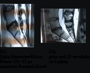 Μαγνητική δισκοκήλης με δισκικό υλικό πριν και μετά τη θεραπεία